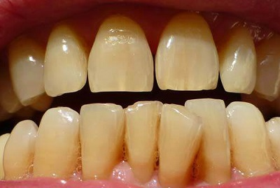 Hết sạch cao răng, mảng bám, ố vàng nếu bạn chà đều đặn thứ này mỗi tối