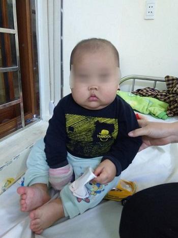 Bé trai 17 tháng tuổi mặt tròn như cái đĩa, bị suy thận cấp vì sai lầm của mẹ