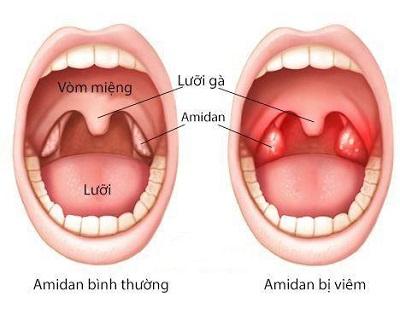 Viêm amidan cấp ở trẻ: Nguyên nhân, triệu chứng và cách điều trị